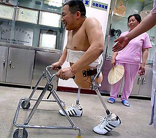 Bionic limbs enable legless man to walk again